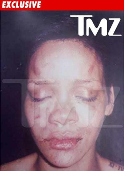 Chris Brown: Waren Drogen schuld an seinen Aussetzern